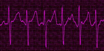 C0265848-Atrial_fibrillation_332x163